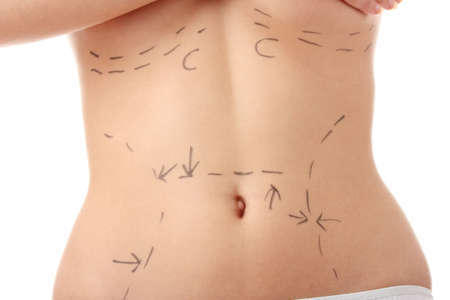 Closeup photo of a caucasian womans abdomen marked with lines for abdominal cosmetic surgery