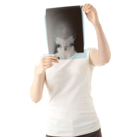 Female doctor examining a haed x-ray photo scan. Isolated on white  photo