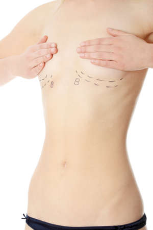 elasticity: Closeup photo of a caucasian womans abdomen marked with lines for abdominal cosmetic surgery  Stock Photo
