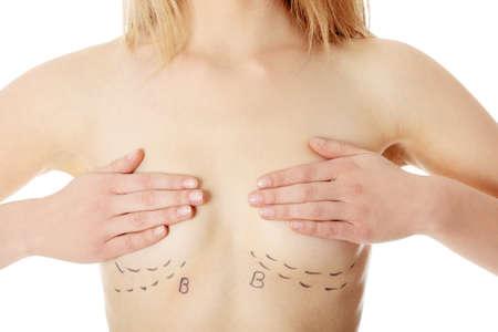 kunststoff: Closeup Foto der eine caucasian Frau Bauch markiert mit Linien f�r Bauch kosmetische Chirurgie