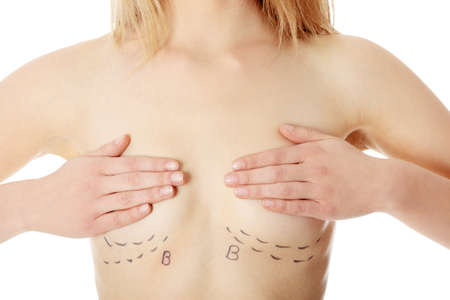 plastic: Closeup photo of a caucasian womans abdomen marked with lines for abdominal cosmetic surgery  Stock Photo