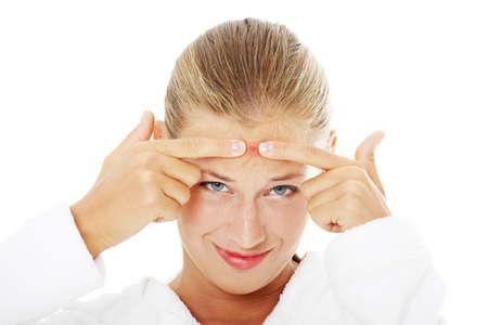 woman issues: Joven adolescente con espinillas en la cara. Aislados sobre fondo blanco.
