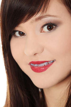Portrait of smiling teen woman with correcting device on teeth photo