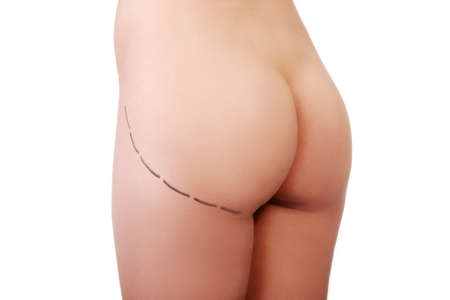 girl ass: Womans buttock prepared to plastic surgery , isolated on white Stock Photo