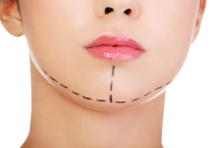 Woman marked out for cosmetic surgery. Isolated on white.  版權商用圖片