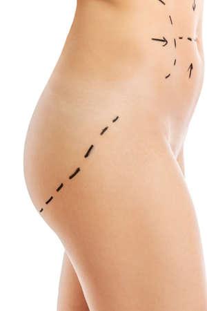 Mujer Cuerpo Marcado Por La Cirugía Estética. Fotos, Retratos ...