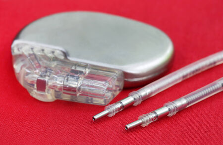 pacemaker: Close up of a Pacemaker with Electrical Leads Stock Photo