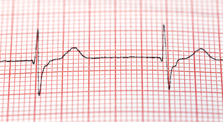 electrocardiograph: Close up of electrocardiograph in paper