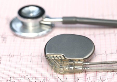 Close up of electrocardiograph with stethoscope and pacemaker