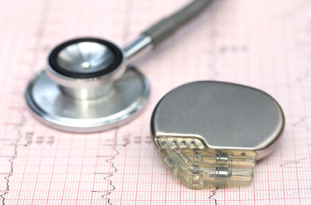 pacemaker: Close up of electrocardiograph with stethoscope and pacemaker