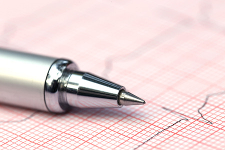 electrocardiograph: Close up of Electrocardiograph with a pen