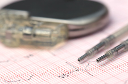 pacemaker: Close up of Electrocardiograph with pacemaker