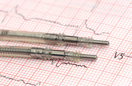 pacemaker: Close up of Pacemaker leads on electrocardiograph Stock Photo