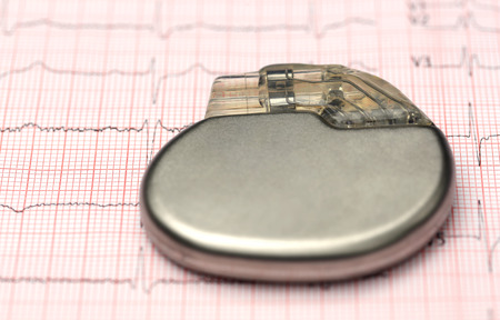 pacemaker: Close up of Pacemaker on electrocardiograph Stock Photo