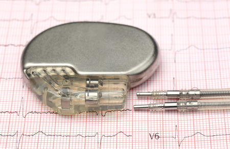 Close-up van de pacemaker op electrocardiograph