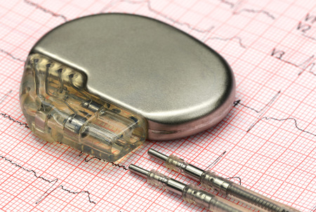 pacemaker: Close up of a pacemake on Electrocardiograph