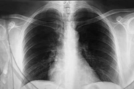 chest xray: Close up a chest xray