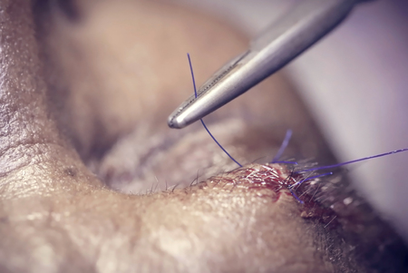 flesh surgery: Stitching wound by with surgical thread Stock Photo