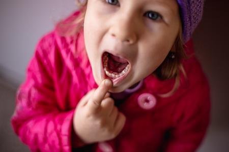 Adult permanent teeth coming in behind baby teeth: shark teeth. Opened mouth of little girl.
