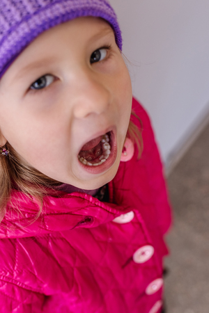 Adult permanent teeth coming in behind baby teeth: shark teeth. Opened mouth of little girl.