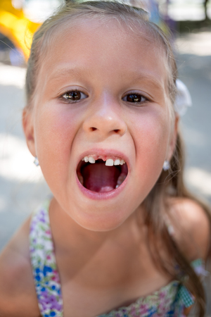 Closeup portrait of little girl without one tooth