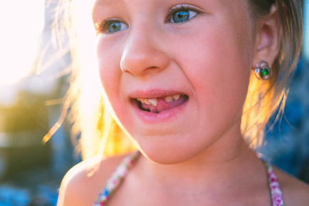 Portrait of a little girl with an outstretched milk tooth.