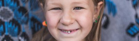 Dairy tooth fell out of the child. Little girl wobble loose tooth.