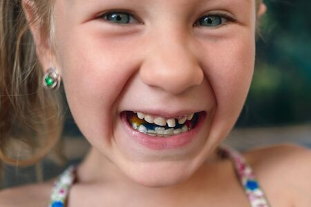 Little girl with orthodontics appliance and wobbly tooth.