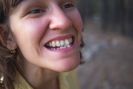 Photo of crooked woman teeth Stock Photo
