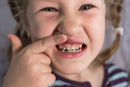 Adult permanent teeth coming in front of the child's baby teeth: shark teeth. Little girl's open mouth.
