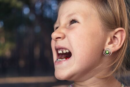 Little girl with orthodontics appliance and crooked teeth. Wobbly tooth 写真素材
