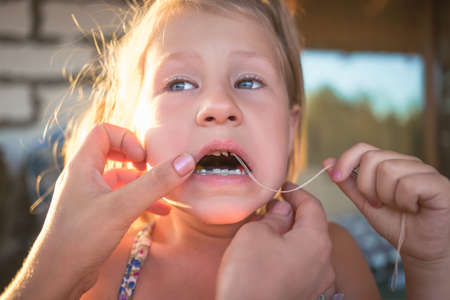 The process of removing a baby tooth using a thread. Banque d'images