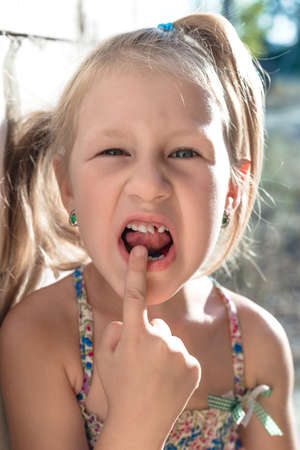 Little girl points the finger at a wobbly baby tooth.