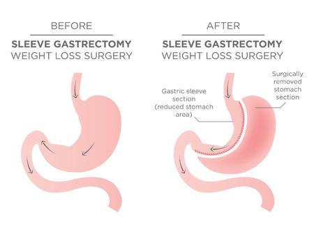 Brzuch Zszywanie chirurgii bariatrycznej w wyniku czego 1/4 żołądka usunięta. Ilustracje wektorowe