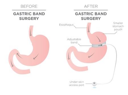 Gastric Band for Weight Loss.  If you Tighten or Loosen it, It Lets More Food Slide Down in the Lower Stomach.  The Doctor Assistant Adjusts the Tightness of the Band with a Port that's Under the Skin.