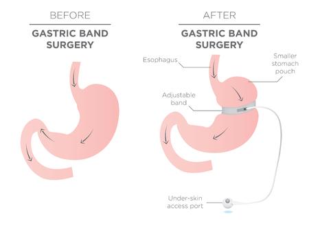 Opaska żołądkowa dla Weight Loss. Jeśli dokręcania lub odkręcania go, pozwala więcej żywności zsuwać w Dolnej żołądka. Doktor asystent Reguluje szczelność Band z portu, który znajduje się pod skórą. Ilustracje wektorowe