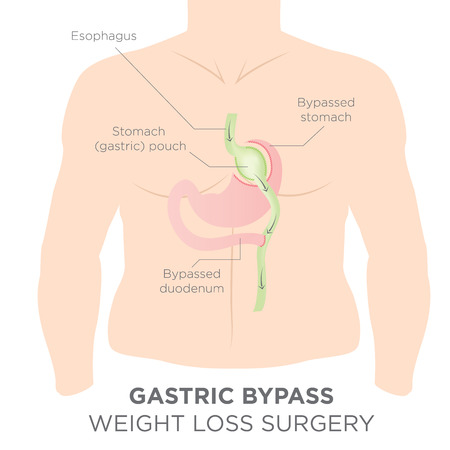 Gastric Bypass for Weight Loss - You Are Actually Re-routing Your Stomach in Order to Feel Full and Eat Less  イラスト・ベクター素材