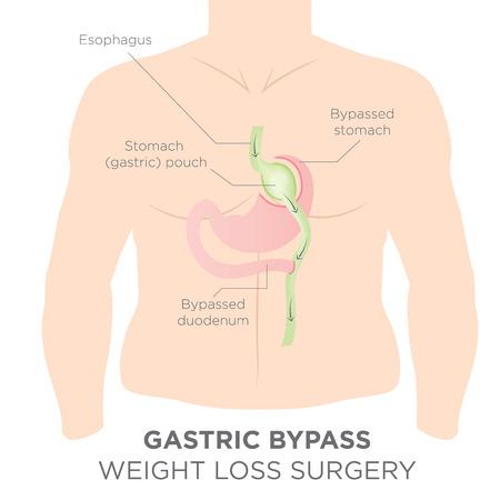 Magen-Bypass für Weight Loss - Sie sind weniger Eigentlich Re-Routing Ihr Magen, um sich voll und essen Vektorgrafik