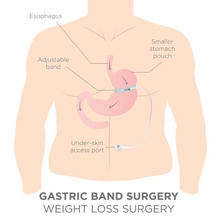Bande gastrique pour perdre du poids. Si vous serrer ou desserrer, il permet de plus de nourriture glisser vers le bas dans le bas ventre. Le Docteur adjoint Règle la justesse de la bande avec un port qui est sous la peau.