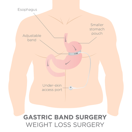 esophagus: Gastric Band for Weight Loss.  If you Tighten or Loosen it, It Lets More Food Slide Down in the Lower Stomach.  The Doctor Assistant Adjusts the Tightness of the Band with a Port thats Under the Skin.