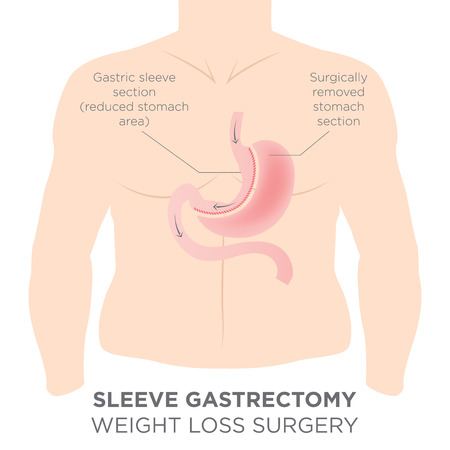 Stomach Staple Bariatric Surgery Resulting in 1/4 of the Stomach Removed. Illustration