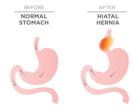 Medical image of Hiatus hernia 版權商用圖片 - 77852590