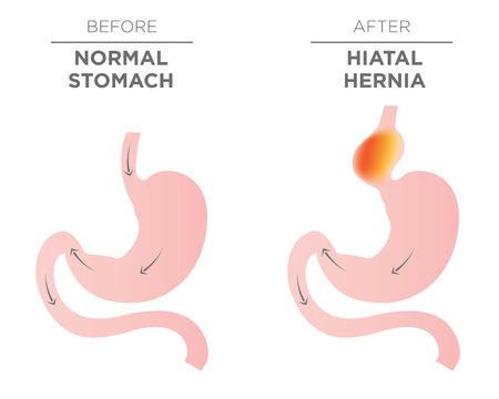 Medical image of Hiatus hernia