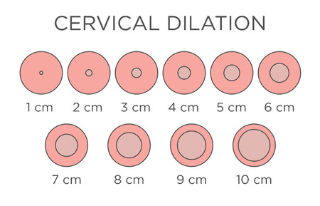 Cervical Dilation Medical Illustration & chart in centimeters