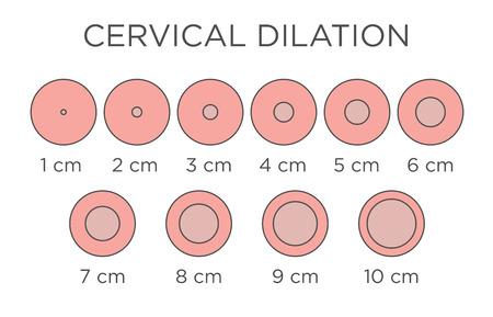 Cervical Dilation Medical Illustration & chart in centimeters Banque d'images - 121868019