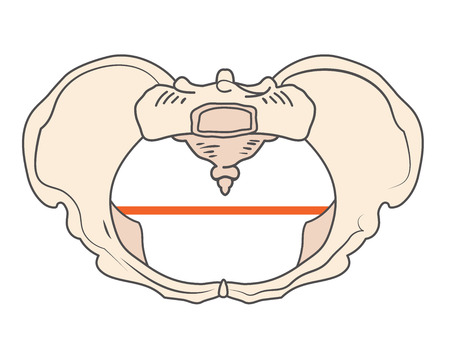 Platypoid / Platypelloid Pelvis Shape with Round or Circular shape