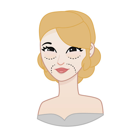 face surgery: cosmetic surgery