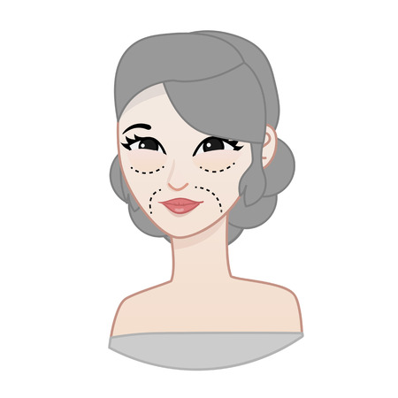 cosmetic surgery: cosmetic surgery