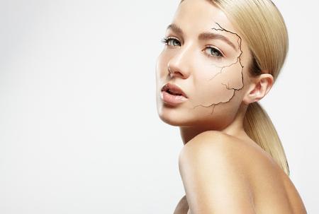 fissure: jolie femme avec une peau craquel�e sur un visage
