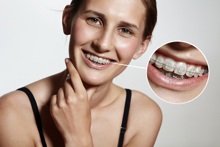 prety girl is smiling with braces and lens showing them bigger Stockfoto
